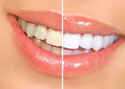 Teeth Whitening Study